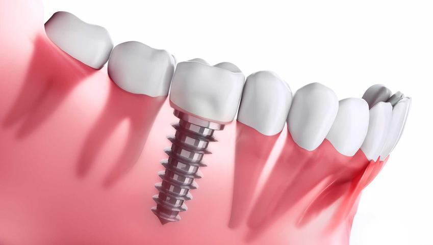 Zobacz, jakie są ceny implanty zębów w całej Polsce