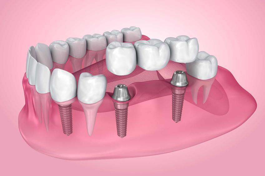 Implant zęba czasami jest niezbędny do założenia całej korony. Sprawdź cenę korony zęba i implantu.