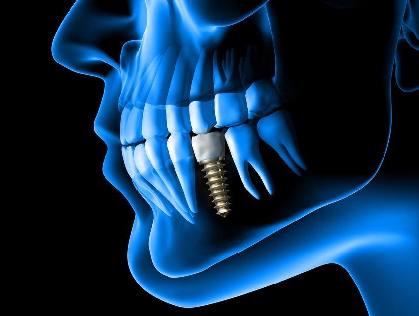Korona zęba to popularne rozwiązanie, chociaż czasem niezbędny jest cały implant zęba