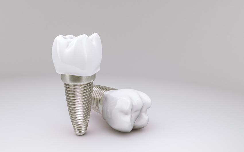 Cena implantów zębowych w 2021 roku. Poznaj cennik!