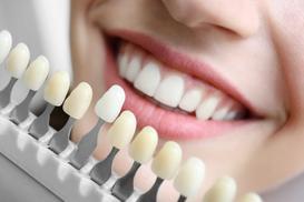 Cennik wybielania zębów 2021 w różnych miastach w Polsce