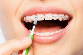 Cennik ortodontów 2021 w całej Polsce - sprawdź aktualne ceny