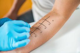 Ceny testów alergologicznych - zobacz, ile kosztują testy
