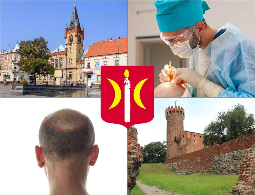 Świecie - cennik przeszczepu włosów - zobacz lokalne ceny transplantacji włosów