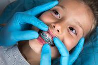 cennik ortodontów - sprawdź lokalne ceny aparatów na zęby