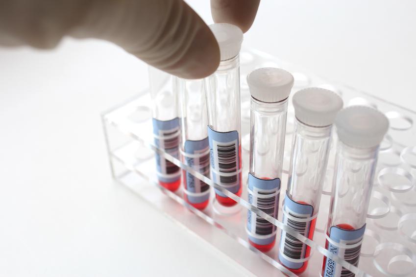 Uśredniony koszt badania poziomu kreatyniny we krwi. Świadczenia medyczne zwolnione z podatku VAT.