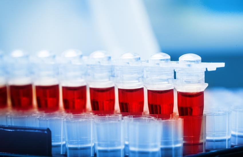 Uśredniony koszt badania poziomu prolaktyny. Świadczenia medyczne zwolnione z podatku VAT.