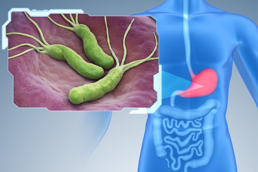 Uśredniony koszt wykonania testu na Helicobacter Pylorii.  Świadczenia medyczne zwolnione z podatku VAT.