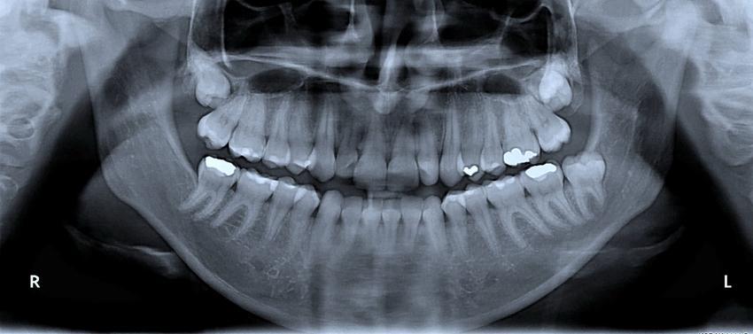 Uśredniona stawka wykonania RTG pojedynczsego zęba.  Świadczenia medyczne zwolnione z podatku VAT.