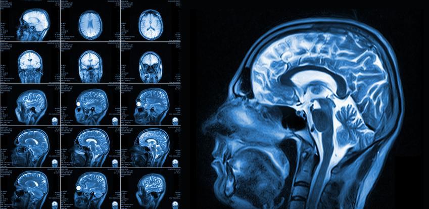 Średni koszt wykonania rezonansu magnetycznego głowy, bez kontrastu.  Świadczenia medyczne zwolnione z podatku VAT.