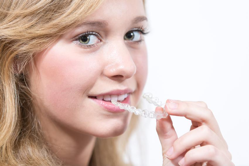 Cena wykonania stałego retainera. Usługi stomatologiczne zwolnione z podatku VAT.