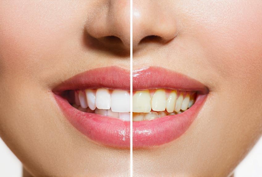 Usługa wybielana zębów metodą nakładkową. Usługi wybielania objęte 23 procentową stawką odatku VAT.