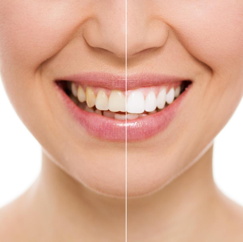 Usługa wybielania martwego zęba. Usługi wybielania objęte 23 procentową stawką podatku VAT.