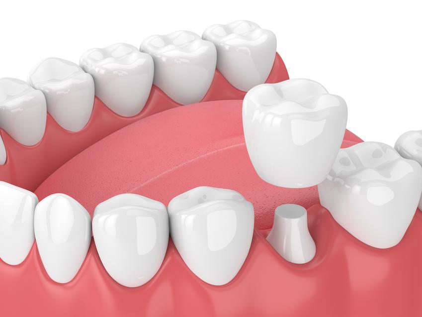 Uśredniony koszt wykonania korony pełnoceramicznej. Usługi stomatologiczne zwolnione z podatku VAT.