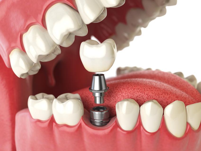 Uśredniony koszt wykonania implantu jednego zęba. Dobrej jakości materiał. Usługi stomatologiczne zwolnione z podatku VAT.