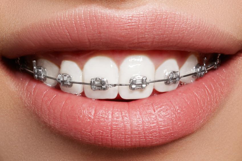 Koszt wykonania dobrej jakości aparatu ortodontycznego. Aparat jednoszczękowy, ruchomy. Cena usługi zwolniona z podatku VAT.