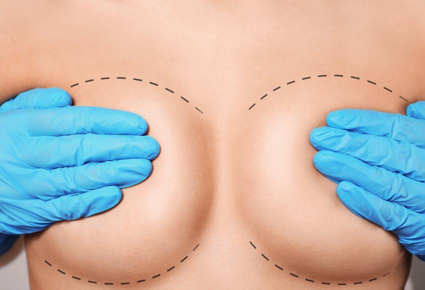 Średnia cena wykonania korekty brodawek obu piersi. Normalny stopień skomplikowania zabiegu, sprawdzona klinika chirurgii plastycznej