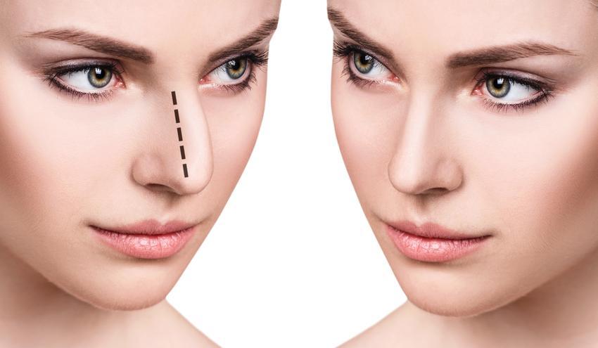 Średni koszt wykonania pełnej korekty nosa. Normalny stopień skomplikowania zabiegu, sprawdzona placówka medycyny estetycznej.