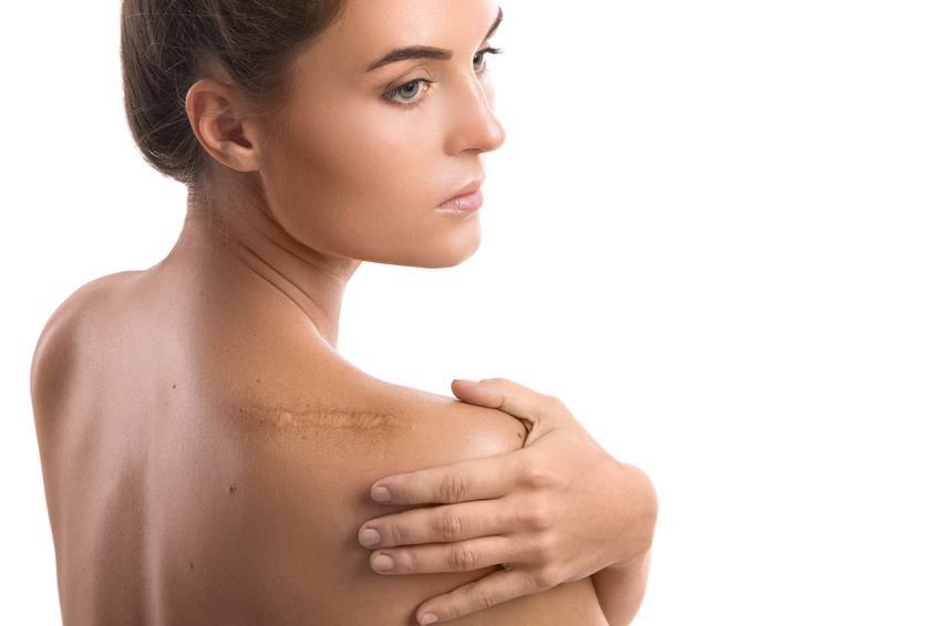 Średni koszt przeprowadzenia laserowej korekty blizn na niewielkim obszarze ciała. Normalny stopień skomplikowania zabiegu, cena kliniki z pośredniej półki.