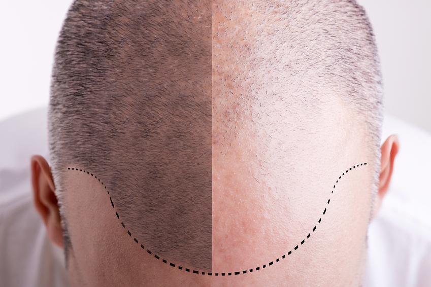 Średni koszt zmniejszenia czoła poprzez opuszczenie linii włosów. Normalny stopień skomplikowania zabiegu, cena sprawdzonej kliniki medycyny estetycznej.