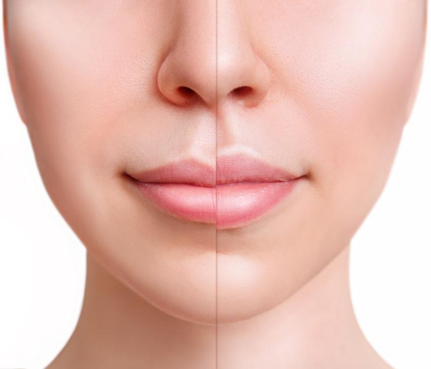Średni koszt wszczepienia implantów ust. Cena sprawdzonej kliniki medycyny estetycznej, normalny stopień skomplikowania zabiegu.