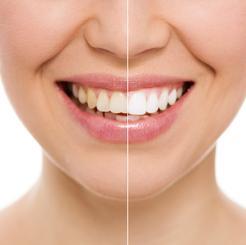 Cena wybielania martwego zęba w ponad 160 miastach w całej Polsce