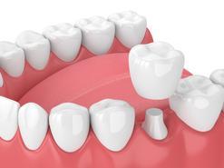 Cena ceramicznych koron zębów w ponad 160 miastach w całej Polsce