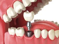 Cena implantów zębów w ponad 160 miastach w całej Polsce
