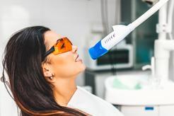 Cennik wybielania zębów lampą beyond 2021 w ponad 150 miastach w Polsce