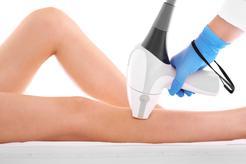 Cena depilacji laserowej łydek w ponad 160 miastach w Polsce